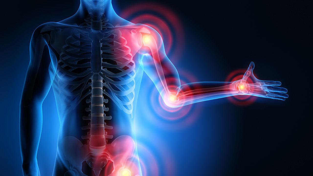Understanding & Treating Arthritis