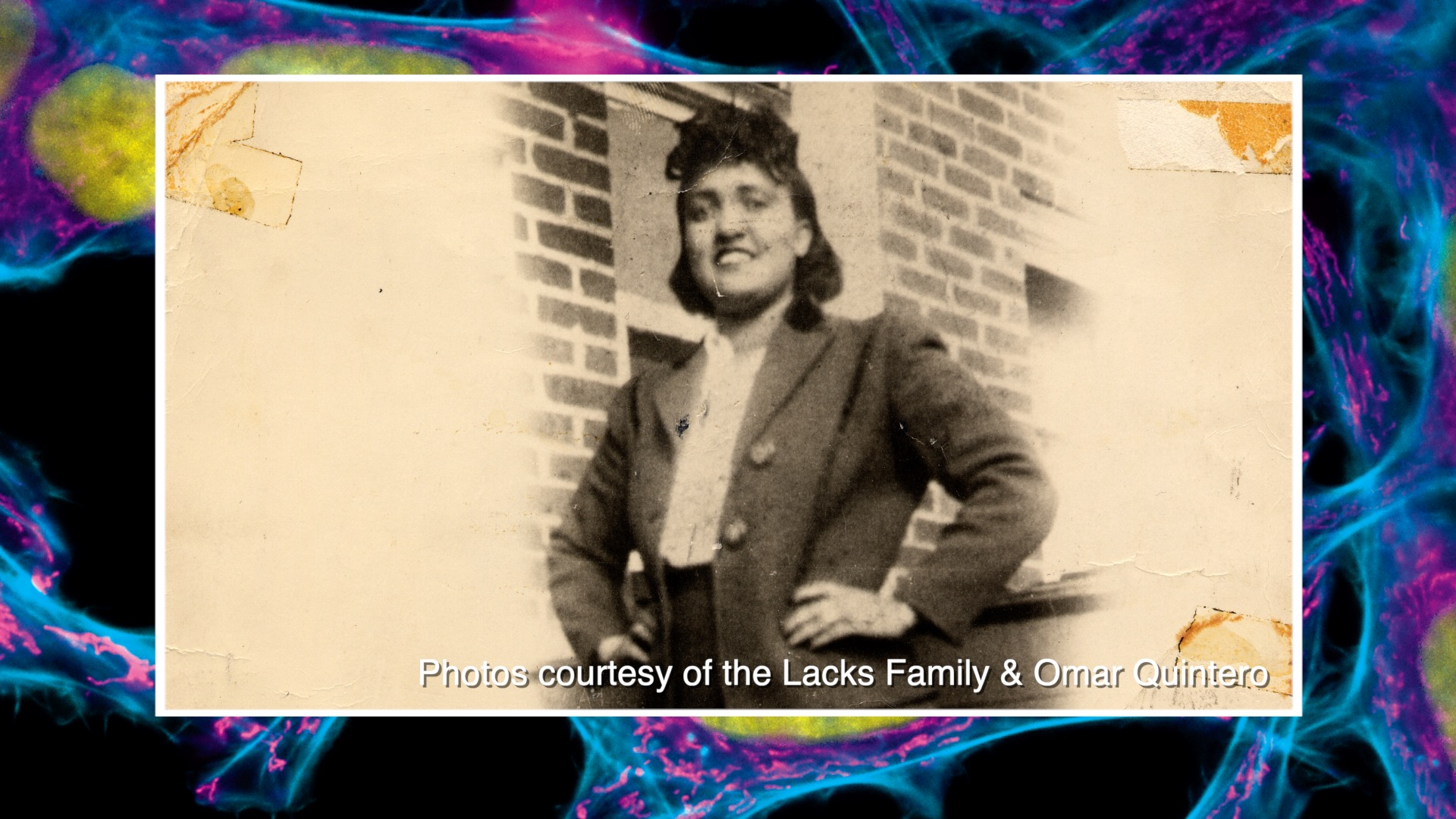 Lacks' Legacy Impacts Battle Against Cancer